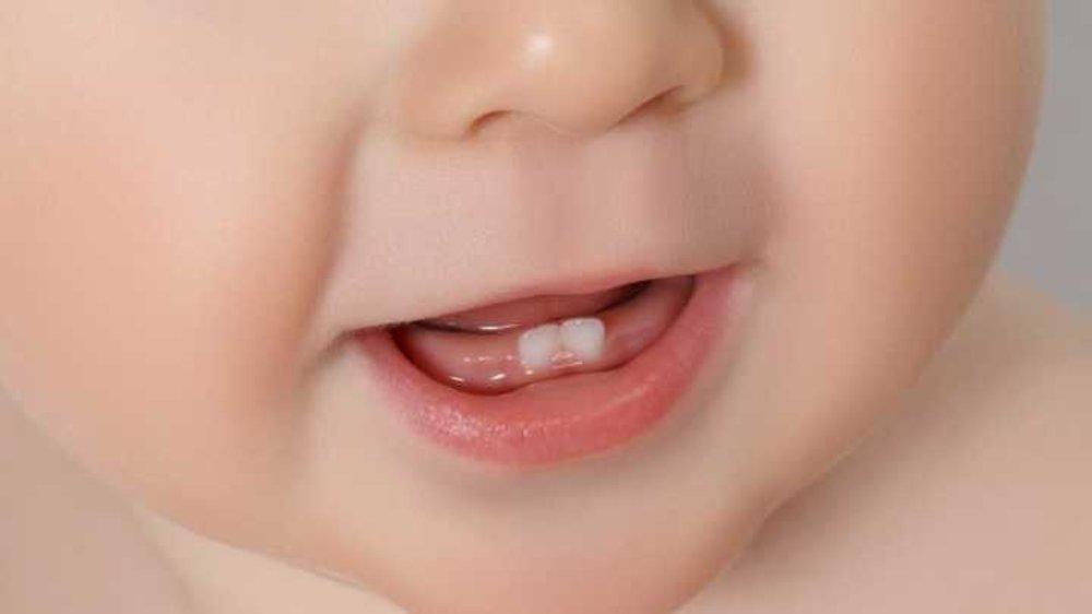 Молочные зубы у детей